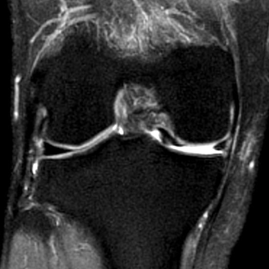 Radiologia do Esporte - Lesão meniscal tipo alça de balde